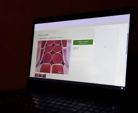 Икра по объявлению: на Авито продают поддельную красную икру